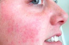 Пылевые клещи: какой вред они могут нанести здоровью человека